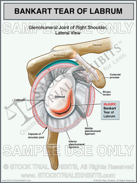Bankart Tear Labrum Injury of the Right Shoulder Stock Medical Illustration trial exhibit