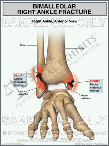 Bimalleolar Right Ankle Fracture