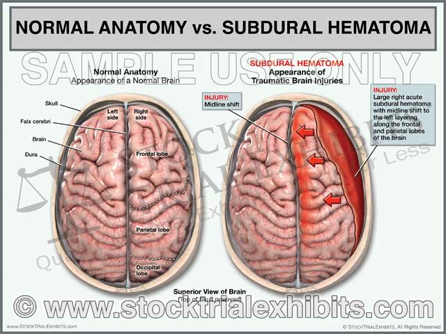 Brain Anatomy vs. Subdural Hematoma Brain Injury