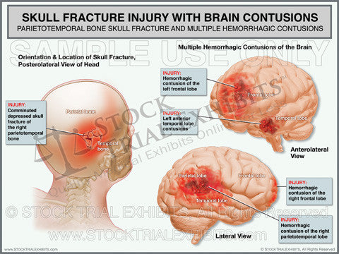 Brain Contusions and Skull Fracture Injury Trial Exhibit