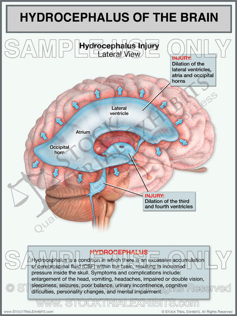 Brain Injury Hydrocephalus