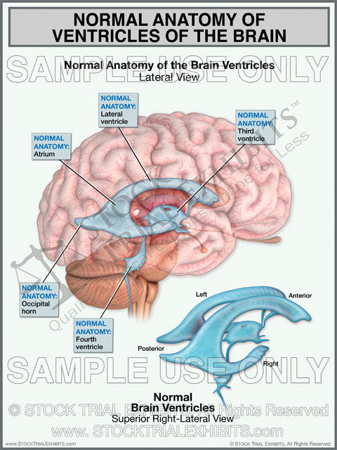Brain Ventricles Normal Anatomy