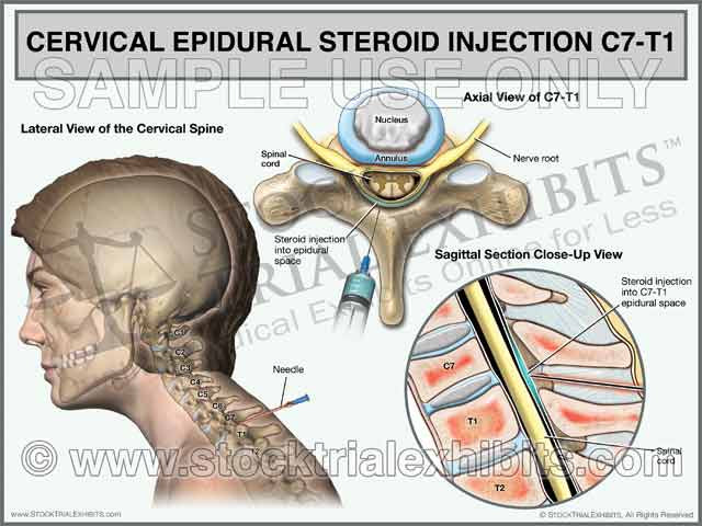 C7-T1 Cervical Epidural Steroid Injection Trial Exhibit (Female)