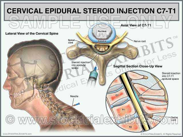 C7-T1 Cervical Epidural Steroid Injection Trial Exhibit (Male)
