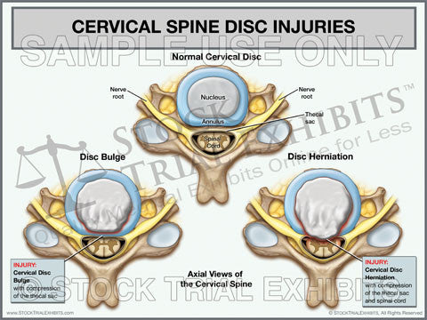 Cervical Disc Injuries