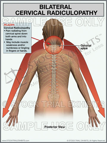 Cervical Radiculopathy, Bilateral cervical radiculopathy trial exhibit, stock medical illustration cervical radiculopathy