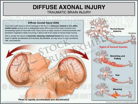 Brain Injury Diffuse Axonal Injury Trial Exhibit
