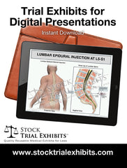Digital Presentation Lumbar Epidural Injection Male L5-S1 Medical Trial Exhibit