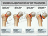 Garden Classification of Hip Fractures Medical Trial Exhibit