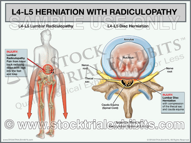L4-L5 Herniation with Radiculopathy - Female