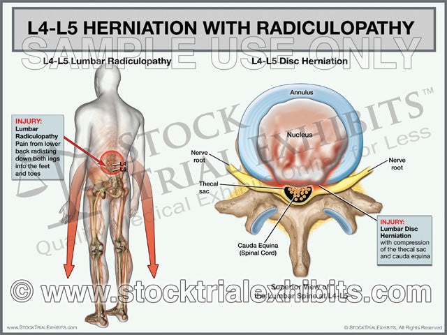L4-L5 Herniation with Radiculopathy - Male