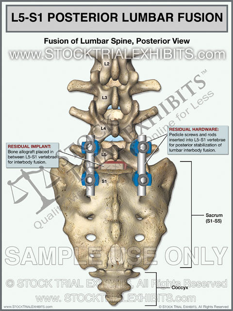 L5-S1 Lumbar Spine Fusion Posterior View
