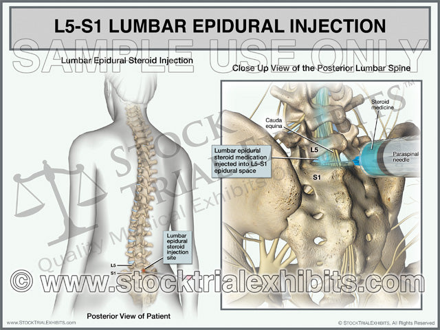 L5-S1 Epidural Injection of Lumbar Spine Trial Exhibit (Female