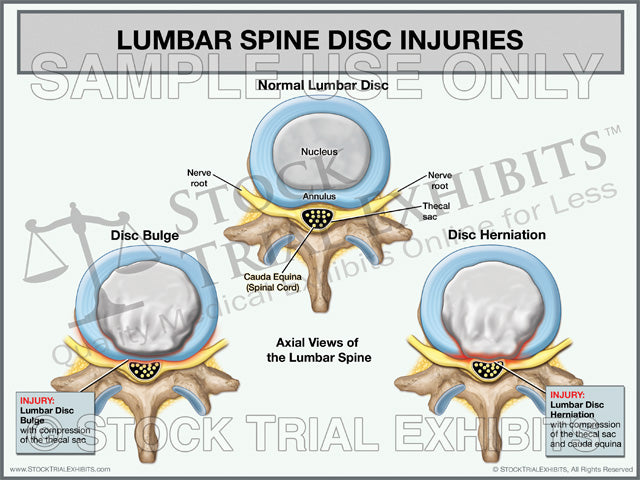 Lumbar Disc Injuries Trial Exhibit (Axial View)