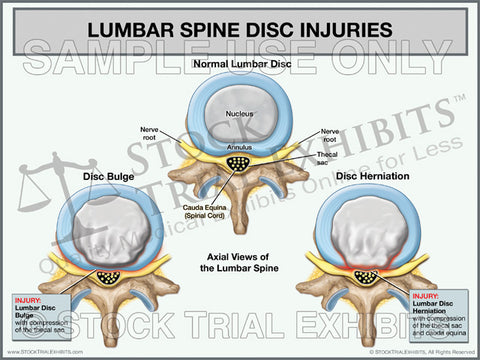 Broad Based Disc Bulge and Herniation - Trial Exhibits for