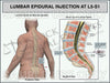 Lumbar Epidural Injection L5-S1 Male Trial Exhibit Lumbar Pain Management