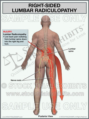 Lumbar Radiculopathy Right Side Trial Exhibit (Male)