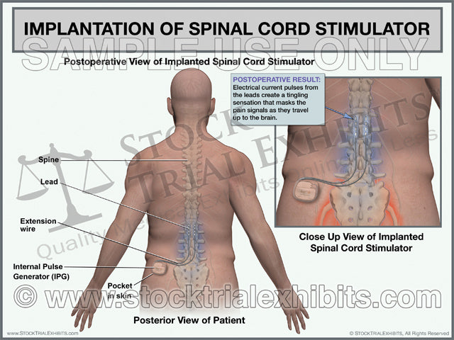 Lumbar Spinal Cord Stimulator Implantation Trial Exhibit (Male)