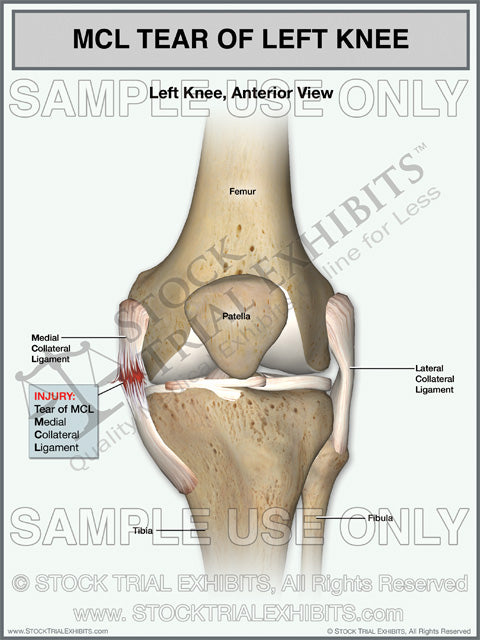 MCL Tear of the Left Knee