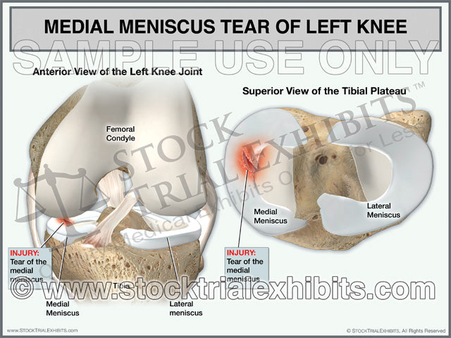 Medial Meniscus Tear of the Left Knee