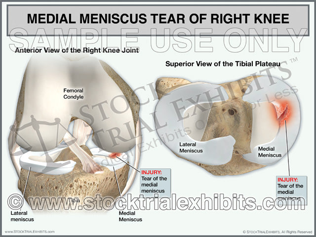 Medial Meniscus Tear of the Right Knee