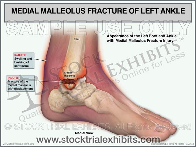 Medial Malleolus Fracture of the Left Ankle