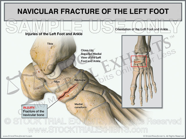 Navicular Fracture of the Left Foot