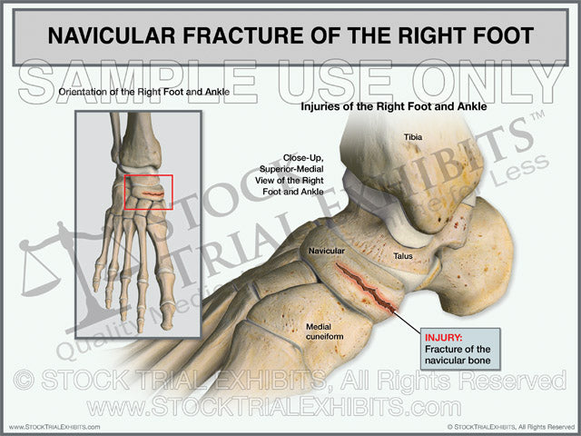 Navicular Fracture of the Right Foot