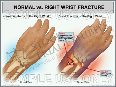 Right Wrist Fracture