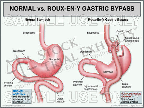 Normal Stomach Vs Roux En Y Gastric Bypass Trial Exhibit Stock