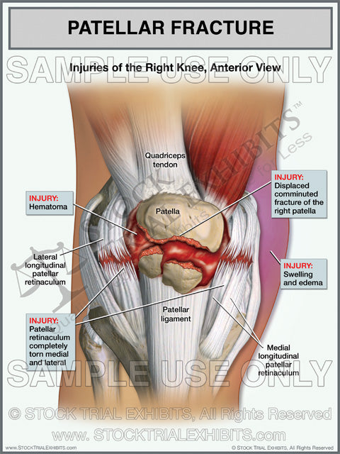Patellar Fracture Of The Right Knee With Torn Retinaculum Stock