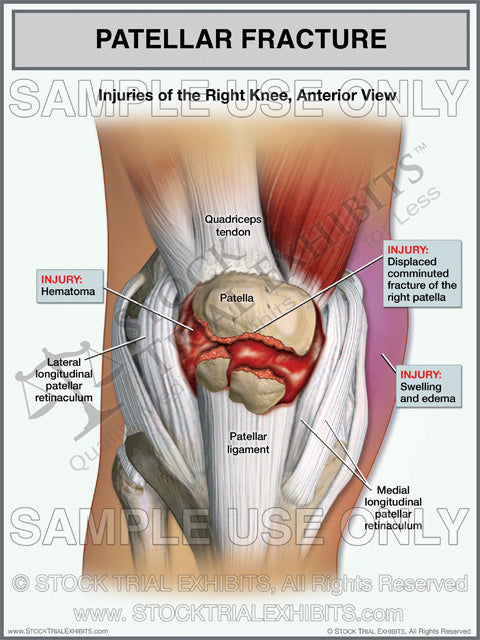 Patellar Fracture of Right Knee
