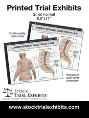 Printed Small Format Lumbar Epidural Injection L5-S1 Male Medical Trial Exhibit