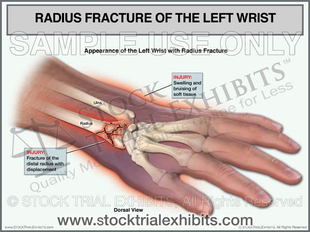 Radius Fracture of the Left Wrist