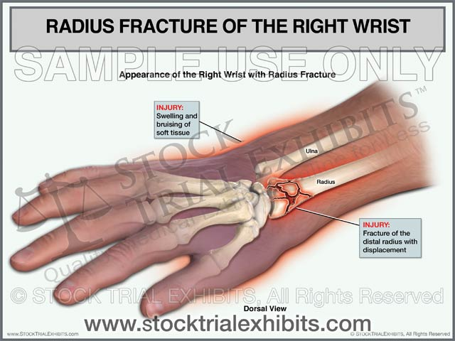 Radius Fracture of the Right Wrist