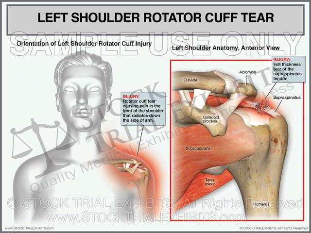 Rotator Cuff Tear of the Left Shoulder - Female Orientation