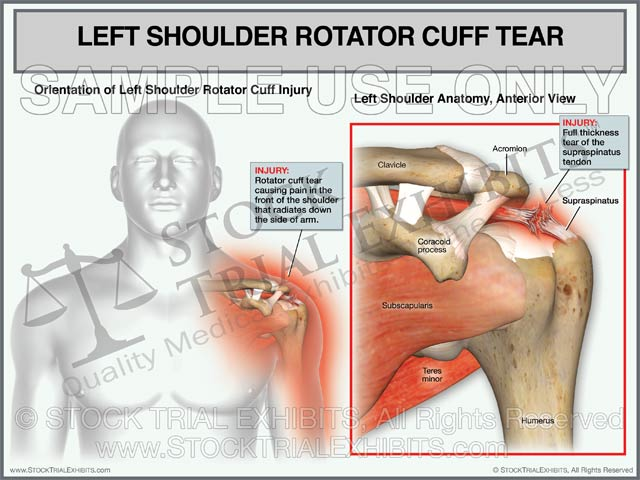 Rotator Cuff Tear of the Left Shoulder - Male Orientation