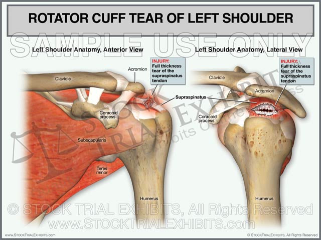 Rotator Cuff Tear of Left Shoulder - Anterior and Lateral Views