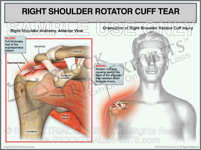Rotator Cuff Tear of the Right Shoulder - Female Orientation