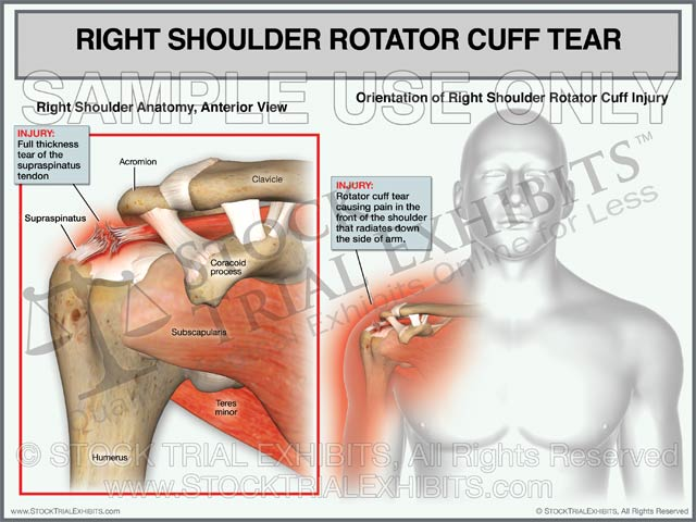 Rotator Cuff Tear of the Right Shoulder - Male Orientation