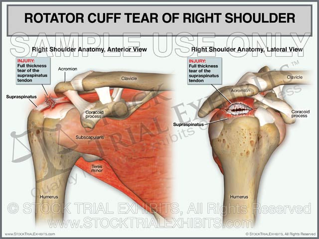 Rotator Cuff Tear of Right Shoulder - Anterior and Lateral Views