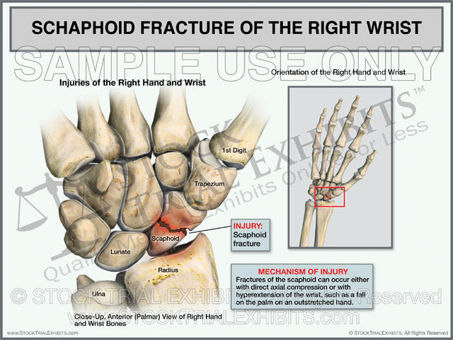 Scaphoid Fracture of the Right Wrist