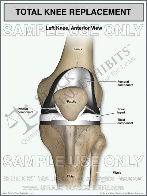 Total Knee Replacement of the Left Knee