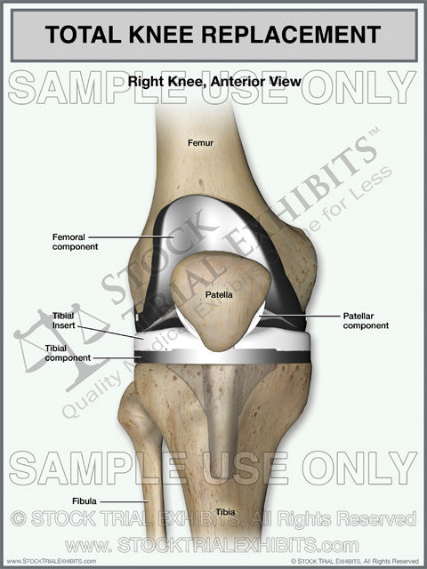 Total Knee Replacement of the Right Knee – Stock Trial Exhibits