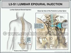 lumbar_epidural_injection
