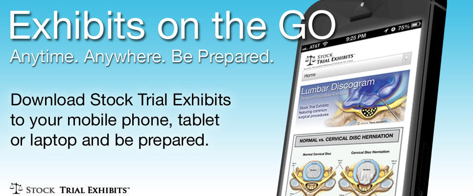 Stock trial exhibits on the Go