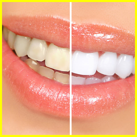 Is teeth whitening safe? Tadsmile