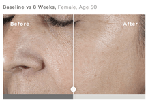 Load image into Gallery viewer, DrFreund Skincare Anti-Aging/Antioxidant SkinMedica HA5® Rejuvenating Hydrator