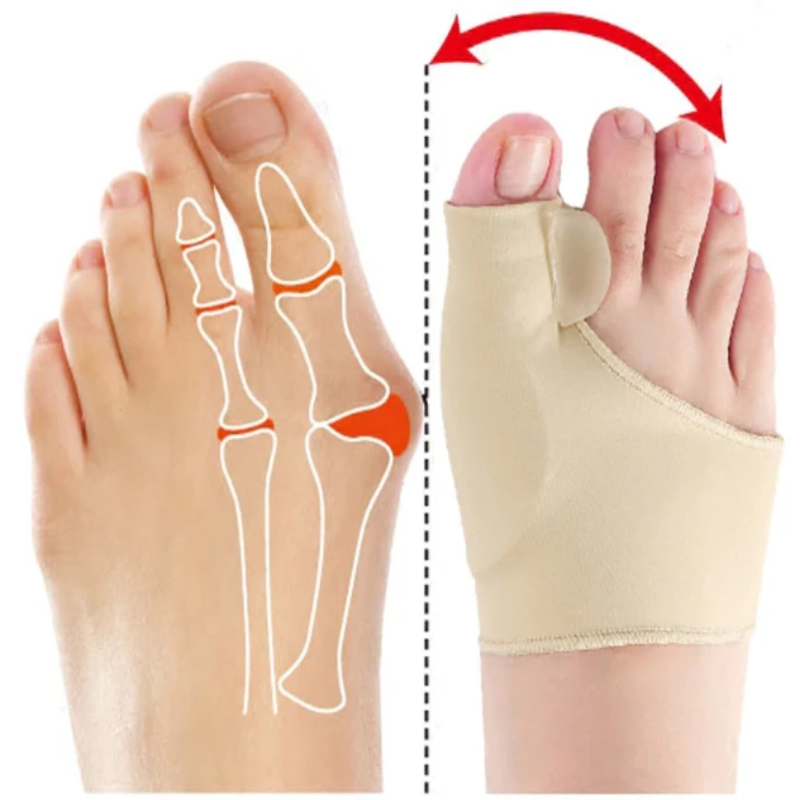 Elastic Bunion Corrector (Updated) Protect the bunion