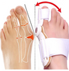 Orthopedic Bunion Corrector - A Non-Surgical Bunion Treatment.